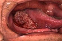 口腔癌とその治療
